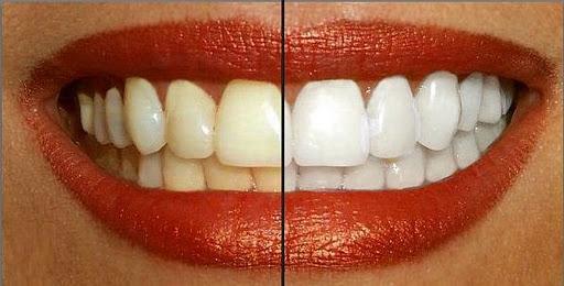 dientes-amarillos-y-blancos
